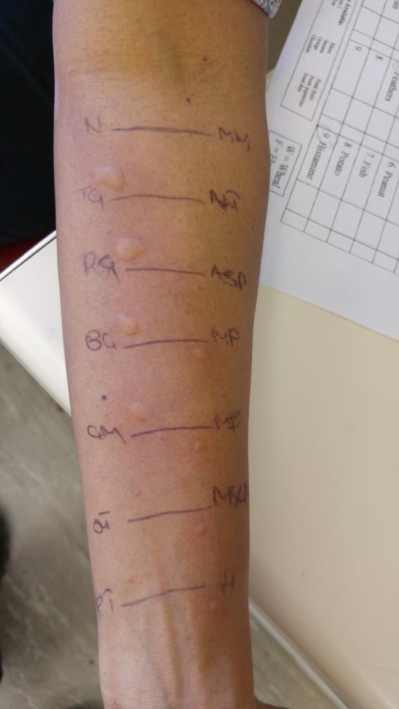 3-skin-test-results