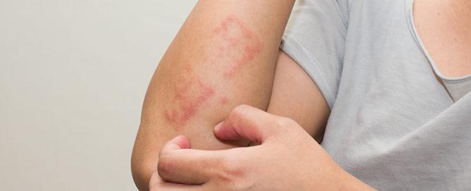 eczema-AFSA