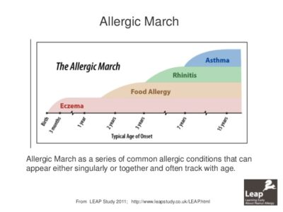 feb-2014-allergy-a-physiology-60-638 allergic march